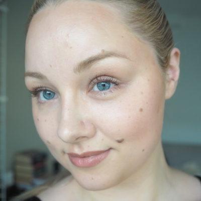 Pohdintaa kauneuskirurgiasta – poistaisinko luomet kasvoiltani?